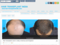 Best Hair Transplant in India Ludhiana, Hair-TransplantIndia.com